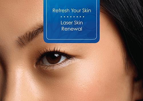 laser-skill-renewal-sm